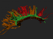 Tractograpy reconstruction from DTI